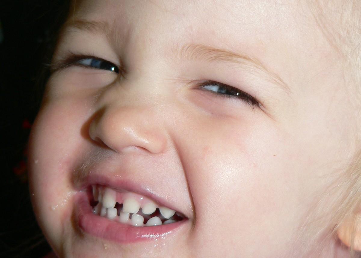 dente-de-leite-1024
