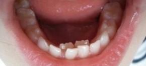 dente-leite-atras-permanente